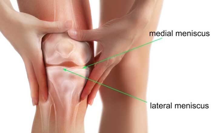 dureri de genunchi menisc boli sistemice ale manifestărilor pielii țesutului conjunctiv