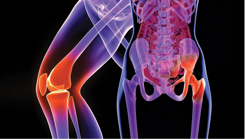 tratamentul cu unguent pentru artrita la genunchi