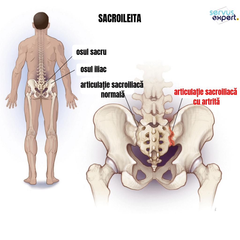 dureri la nivelul articulației sacroiliace ortopedie pentru bolile articulare