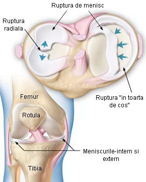 meniscul simptomelor și tratamentului articulației genunchiului dacă nu tratați coxartroza articulației șoldului