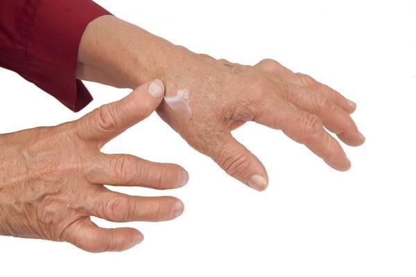 articulațiile mâinilor se umflă și se umflă