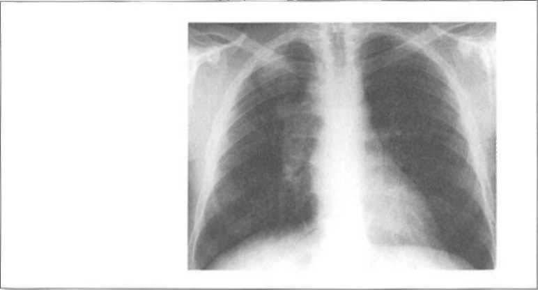 leziuni pulmonare în bolile difuze ale țesutului conjunctiv tratamentul artrozei coloanei vertebrale toracice