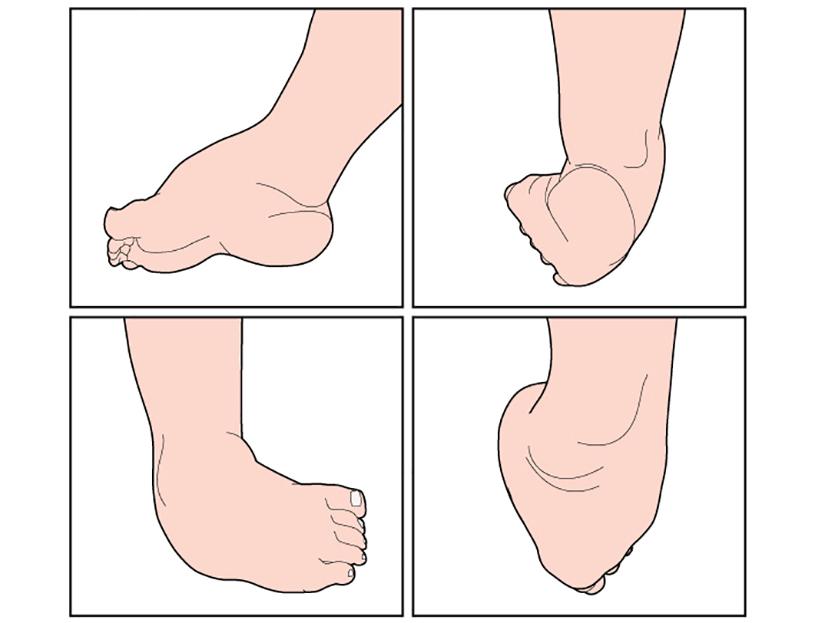 durere la șoldul stâng dimineața dureri la genunchi stâng