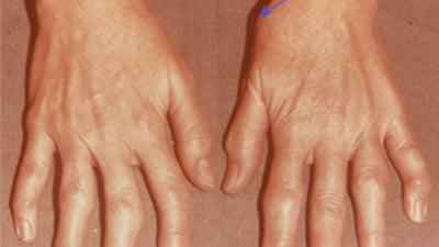 inflamația articulației pe tratamentul mâinilor arnizine cremă articulară Preț