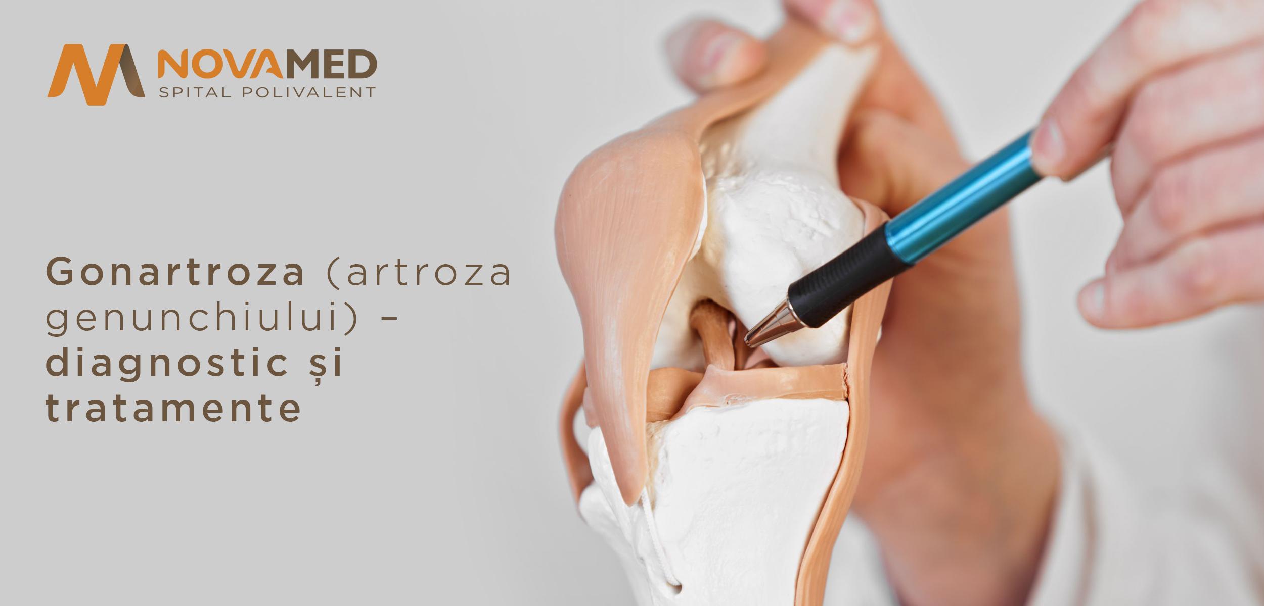 tratamentul clinic al artrozei genunchiului artroza de tratament a cuprului
