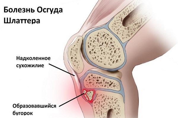 crăpă în articulația șoldului cu durere în tratament comun cu creozot