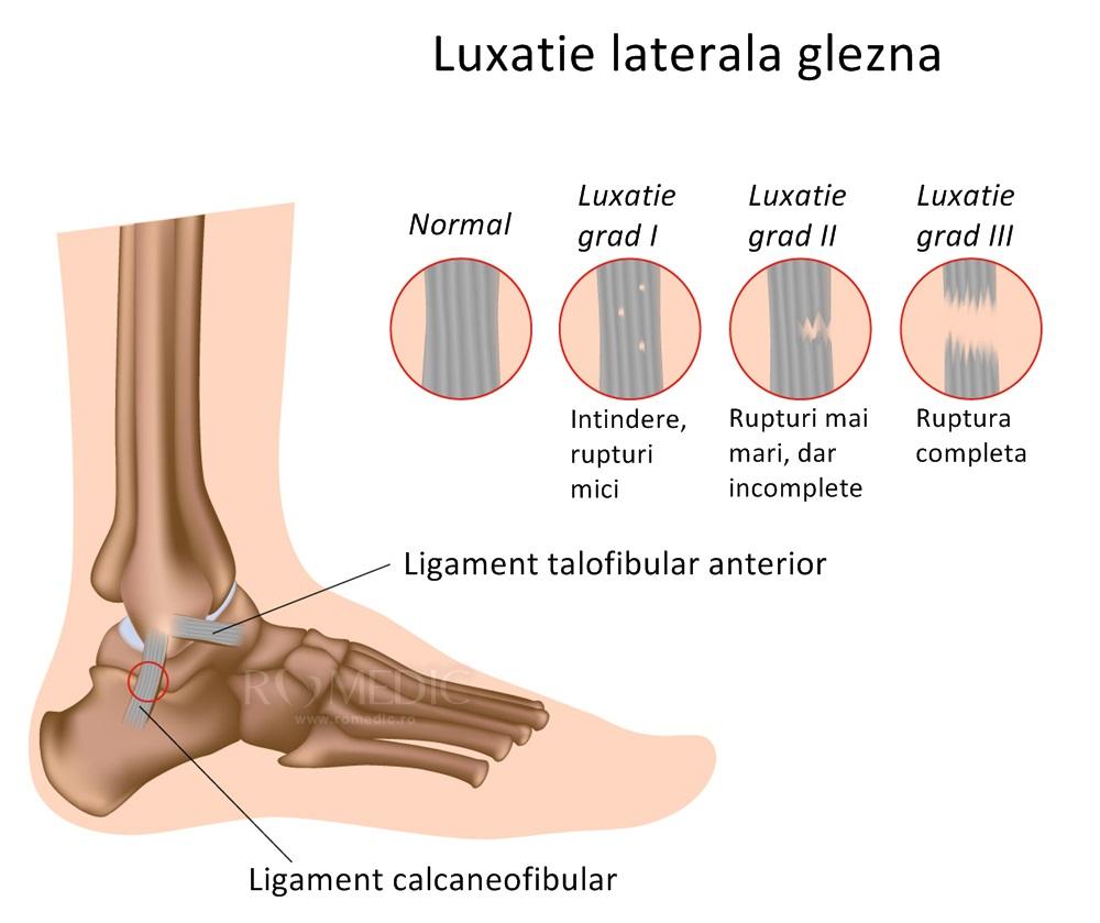 reparația articulațiilor după fractura gleznei