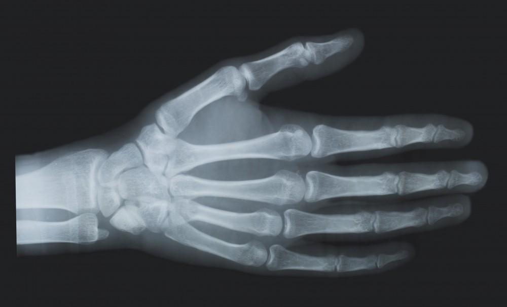 ce sa luati cu artrita genunchiului tratamentul luxației articulațiilor cotului la domiciliu