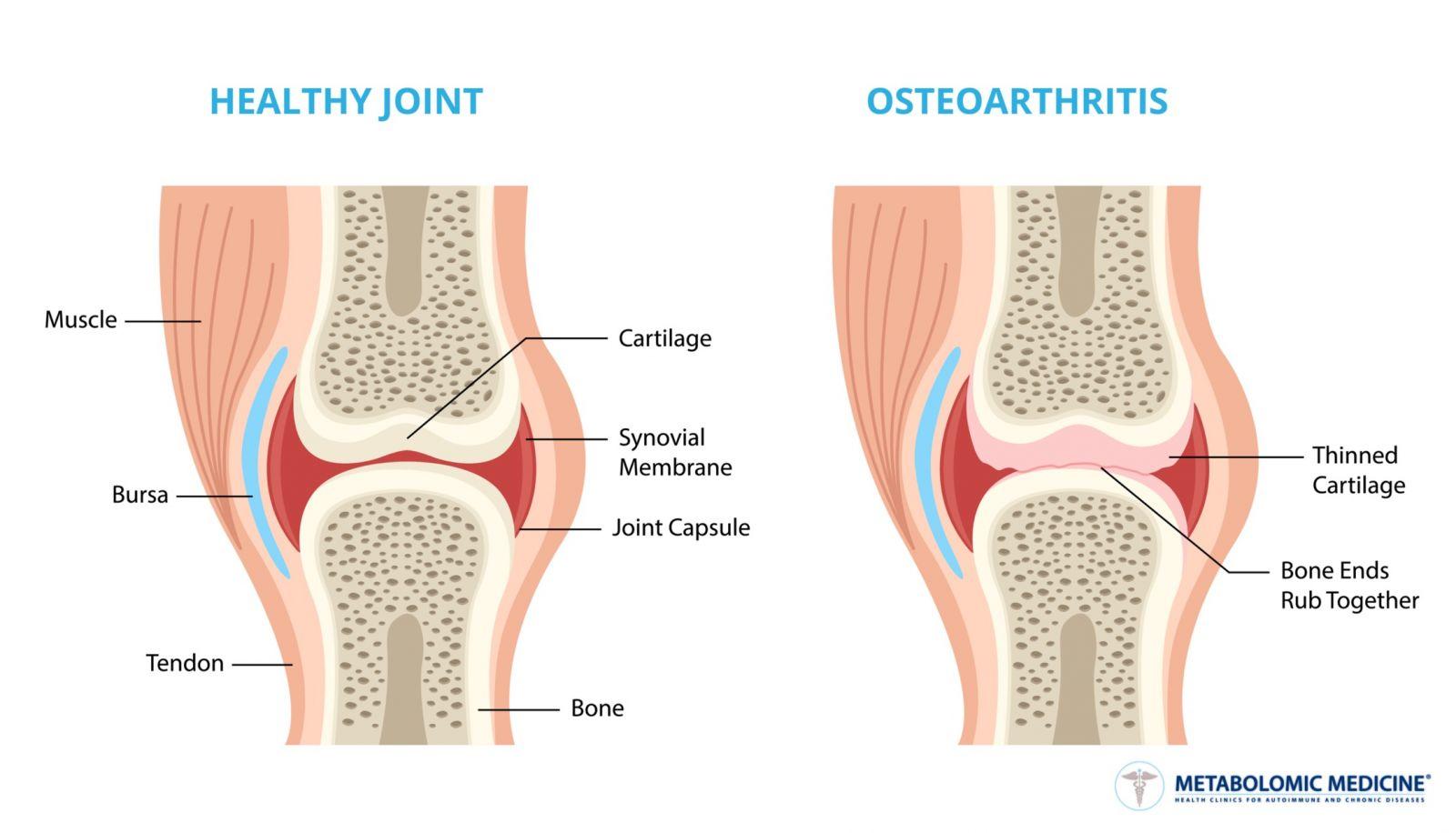 Dona pulbere: instrucțiuni de utilizare - Rănire , Arthron medicine joint