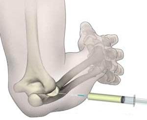 medicamente injectate în articulație pentru ungere Boala articulației Butakovo