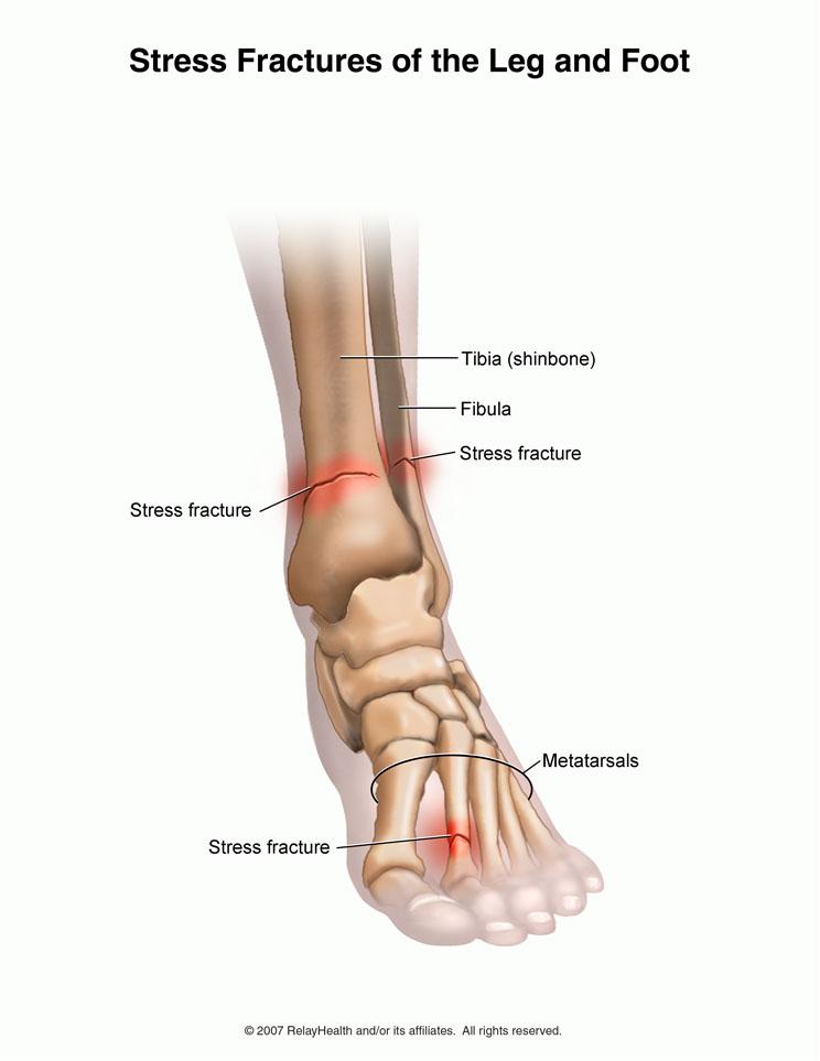 gleznele doare de la alergare ce dureri articulare