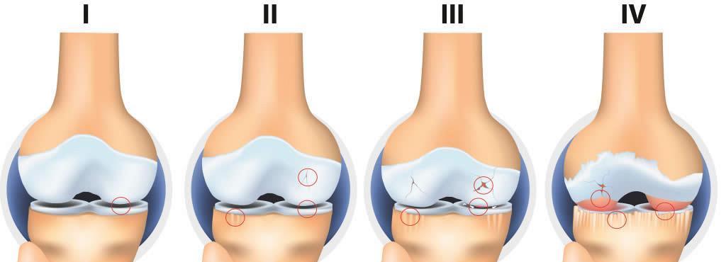 articulația umărului doare câteva luni