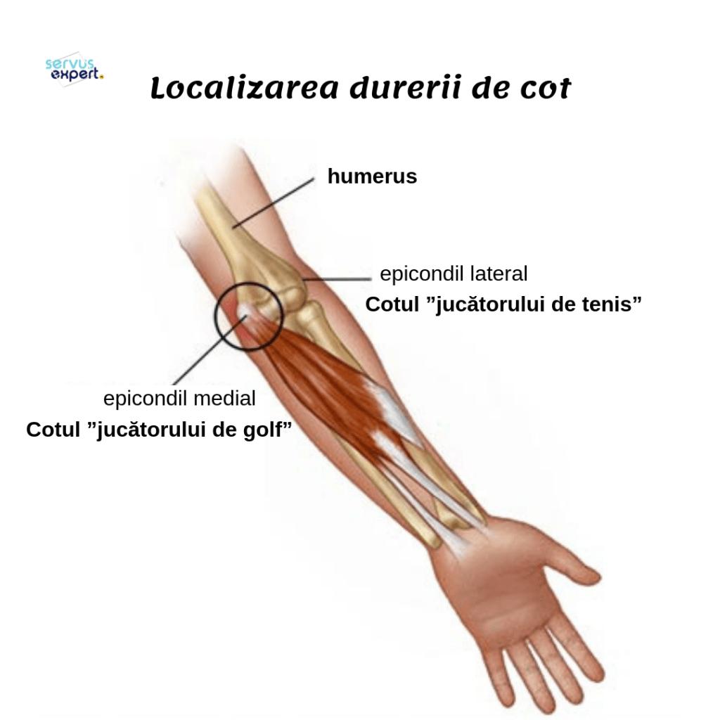 inflamație în articulația cotului