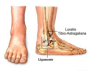 cum se tratează artroza de gradul 3