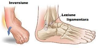 Leziuni articulare cu entorse și tendoane