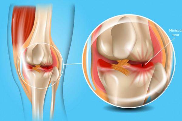meniscul simptomelor și tratamentului articulației genunchiului remedii inflamatorii articulare