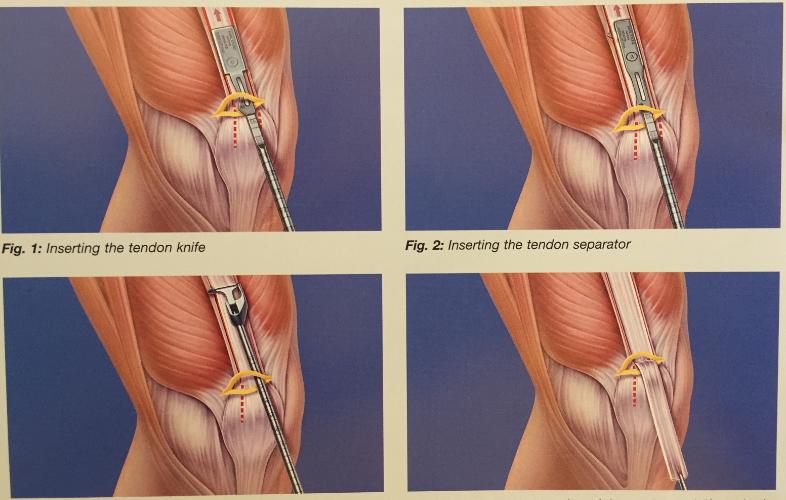 instabilitatea umărului tratament conservator unguent pentru tratamentul artrozei mâinilor
