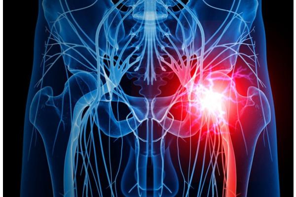 plasma sanguină în tratamentul artrozei pretul medicamentelor comune la farmacie