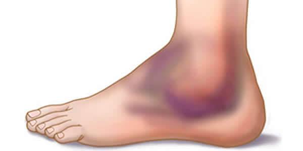 osteoartrita preparatelor articulare ale gleznei reparație articulară după răni