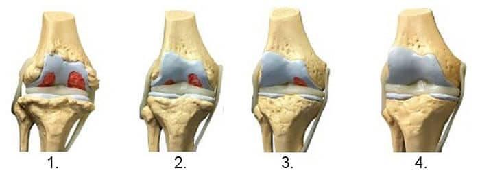 Osteocondroza articulației umărului 2 grade. Osteoartroza forului de tratament de genunchi 1 grad
