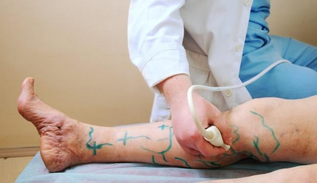 artroza artrita articulației genunchiului cum se tratează