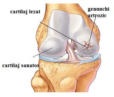 poate trece artroza genunchiului
