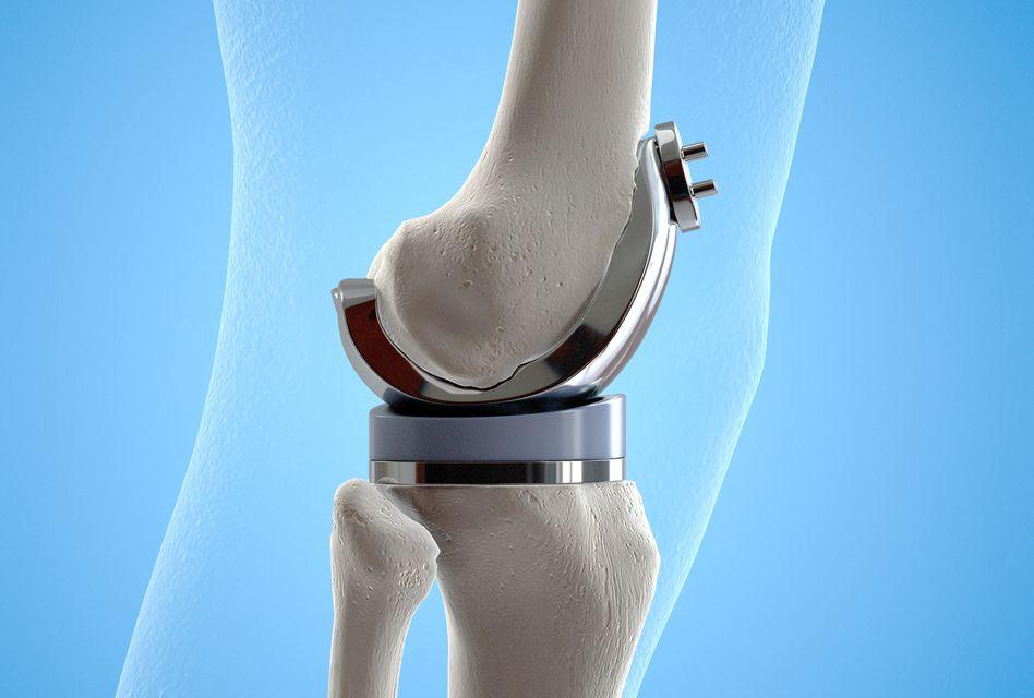 proceduri pentru artroza genunchiului de ce articulația șoldului doare după mers
