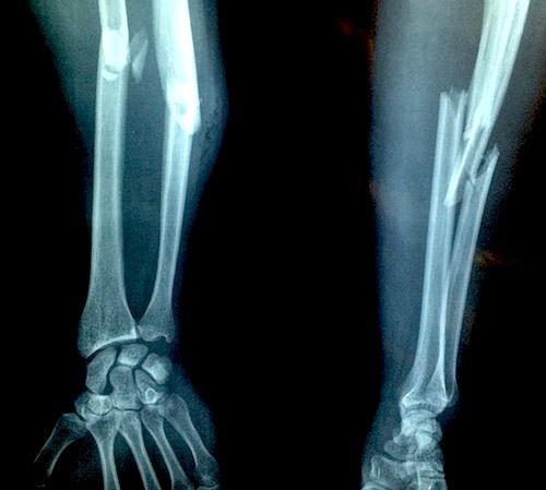 dureri articulare la genunchi cum să amelioreze durerea tratamentul artritei și artrozei genunchiului recenzii