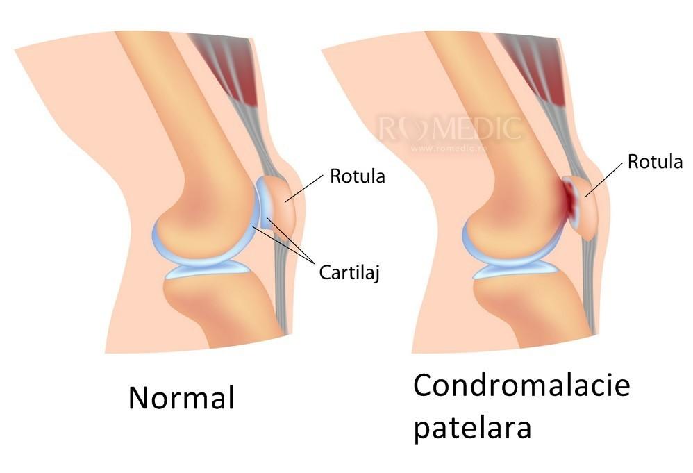 răsucirea articulației genunchiului dureri de gleznă fără niciun motiv