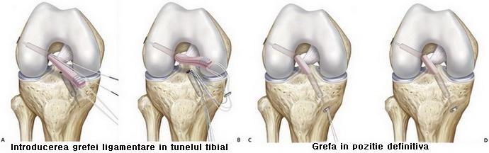 artroza posttraumatică a articulației șoldului