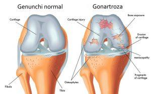 Rusia recurge la tratamentul artrozei durerea în articulația cotului este