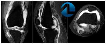 durere la atingerea genunchiului articulațiile creak cum se tratează