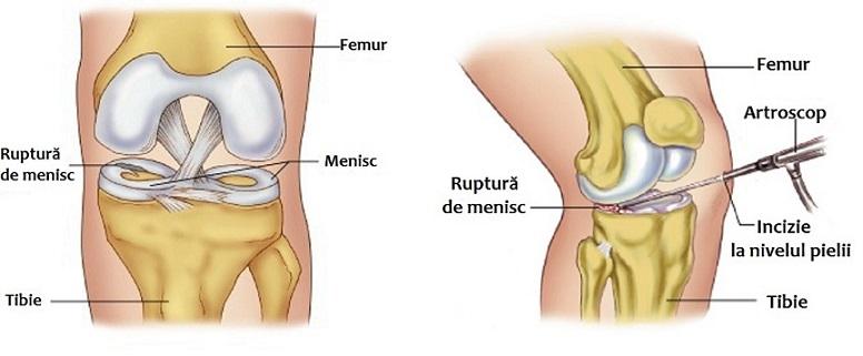 tratament pentru leziunile meniscului genunchiului
