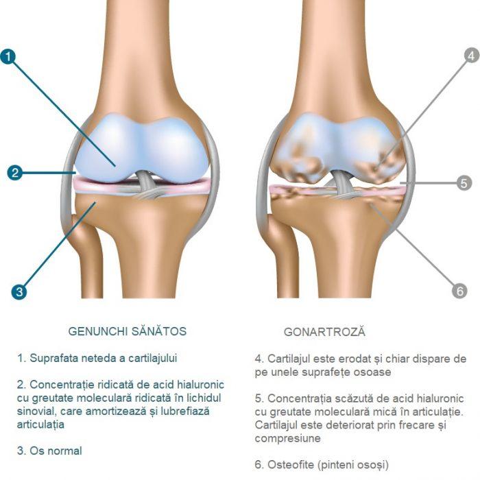 tratamentul artrozei genunchiului cu injecții de acid hialuronic