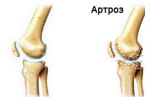 tratamentul artrozei meii umflarea leziunilor gleznei