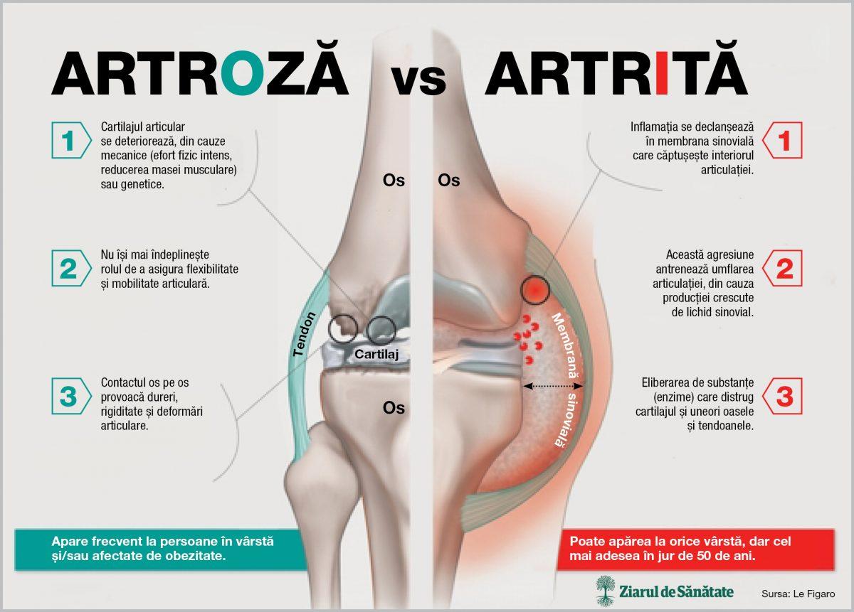 tratamentul artrozei meii cu osteocondroză, deformare articulară