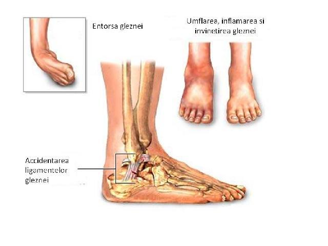 tratamentul umflat și înroșit al articulației gleznei