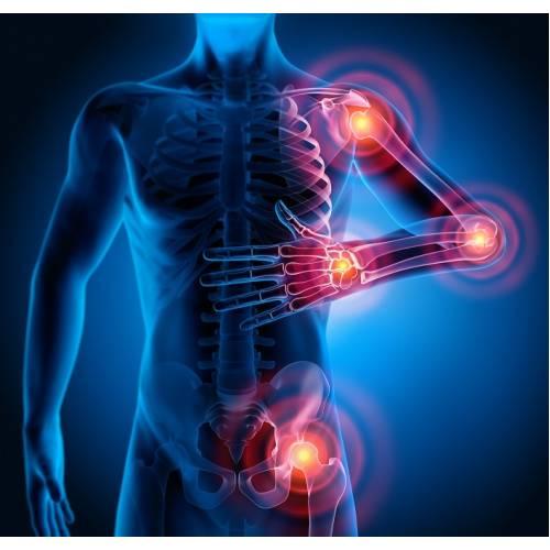 umflarea durerii articulare cu alergii este posibil să restaurați articulațiile cu artroza