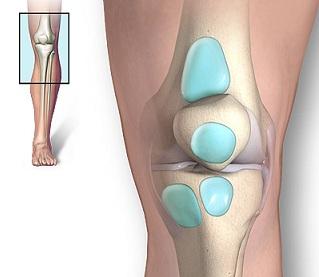 umflarea genunchiului după fractură Unguent de espol pentru osteochondroză