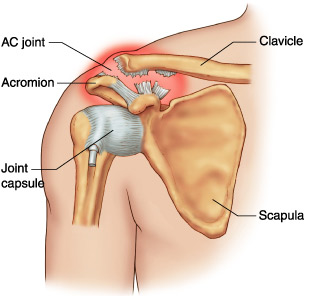 de ce rănesc articulațiile și oasele se crăpă tratamentul artrozei de șold la domiciliu