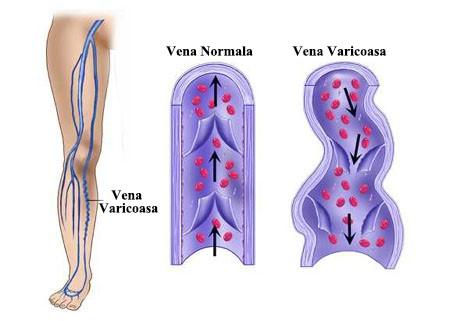 durere chiar sub articulația umărului