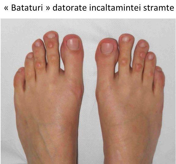 tratamentul artrozei falangei degetelor de la picioare brațele umflate și articulațiile dureroase
