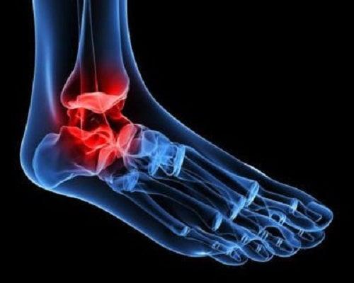 cauza durerii în articulațiile gleznei articulații artroso artroso