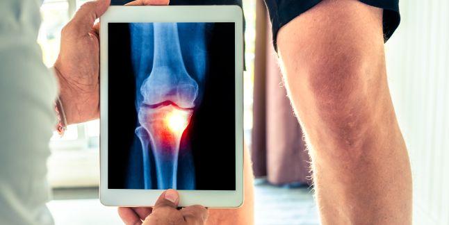 afecțiunea simptomelor și tratamentului genunchiului unguent unguent pentru oase și articulații
