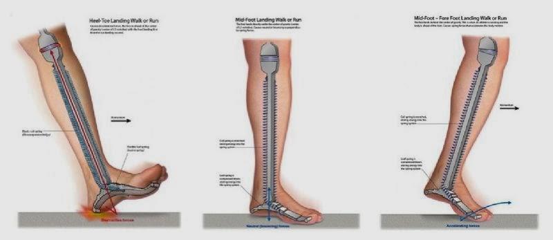 dacă articulațiile doare de la alergare cum este tratată artrita psoriazică