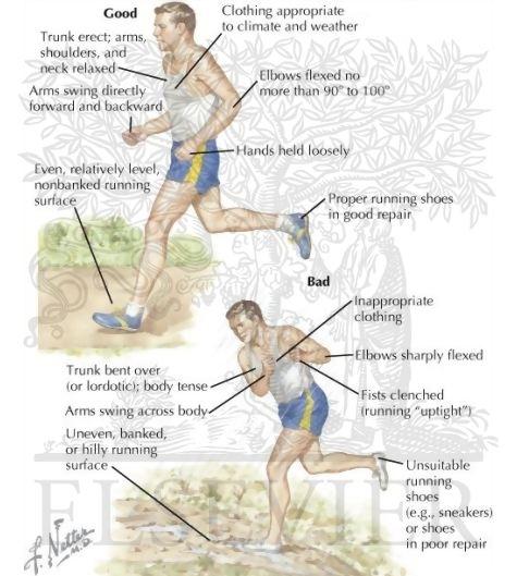 dacă articulațiile doare de la alergare cum se tratează artroza mâinilor