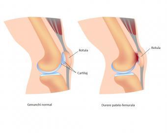 afecțiunea simptomelor și tratamentului genunchiului denumiri de geluri de inflamație articulară