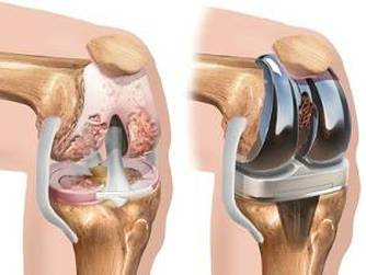 proceduri pentru artroza genunchiului meditație norbekov pentru dureri articulare