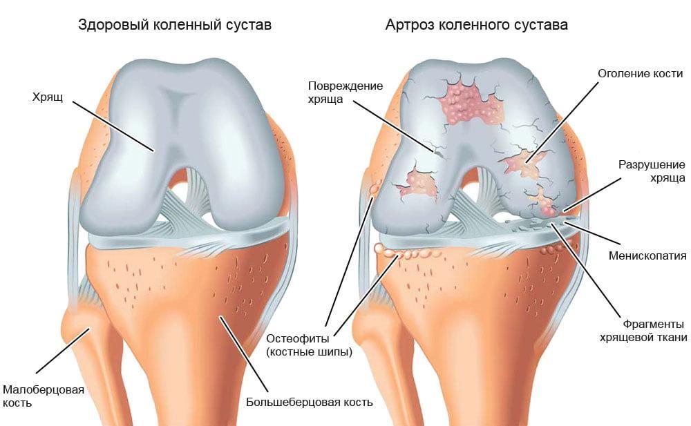 что такое гонартроз и как его лечить durerea în articulațiile picioarelor este