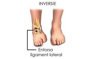 refacerea articulației gleznei după ruperea ligamentelor ruperea meniscului articulației genunchiului